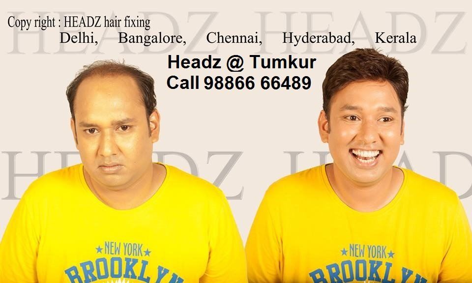 hair fixing in tumkur