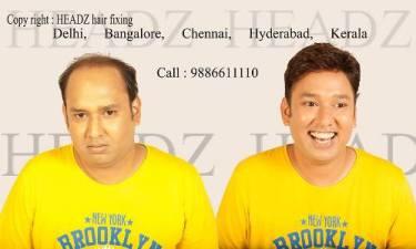headz hair fixing cost